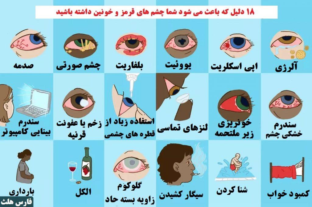 دلایل قرمزی چشم