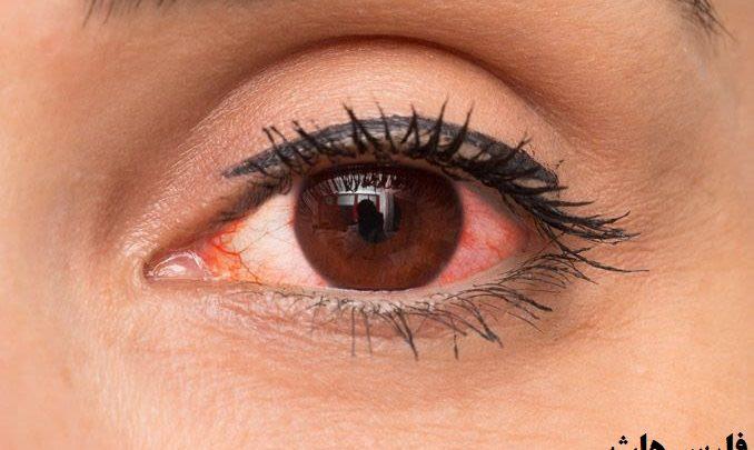 درمان قرمزی چشم در خانه