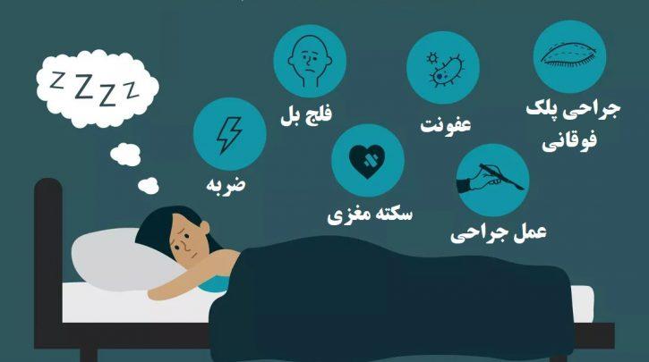 درمان باز ماندن چشم در خواب
