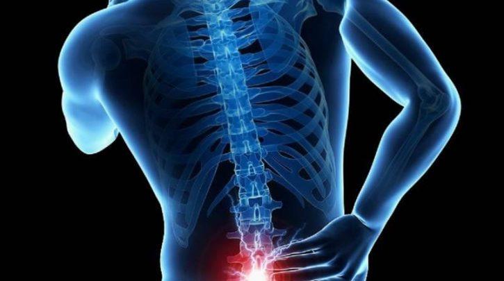 درمان کمردرد با ورزش